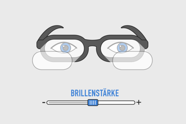 Katarakt OP Animation Brillenstärke